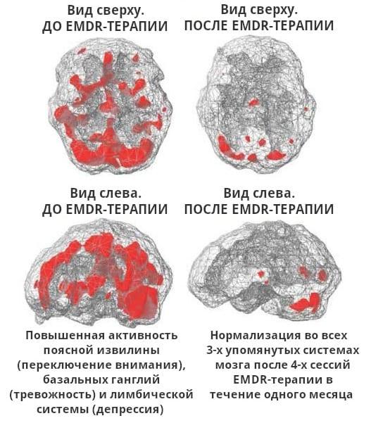 Мозг до и после ДПДГ (МРТ-сканирование)